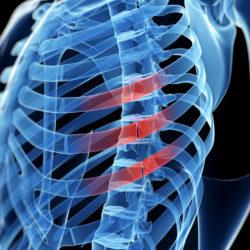 Пример рецензии медицинской экспертизы (Причина смерти, разрыв селезенки, перелом ребра, сепсис)